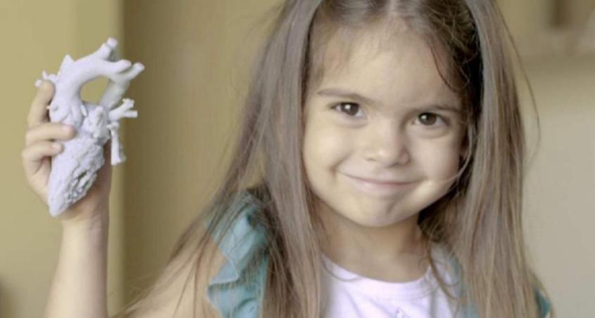 قلب مطبوع بتقنية ثلاثية الأبعاد يساعد على انقاذ حياة طفلة