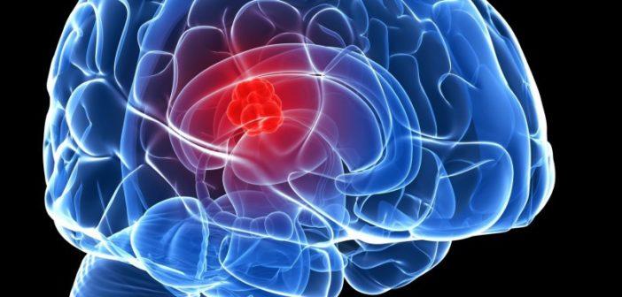 هل يسبب الجوال مرض السرطان ؟